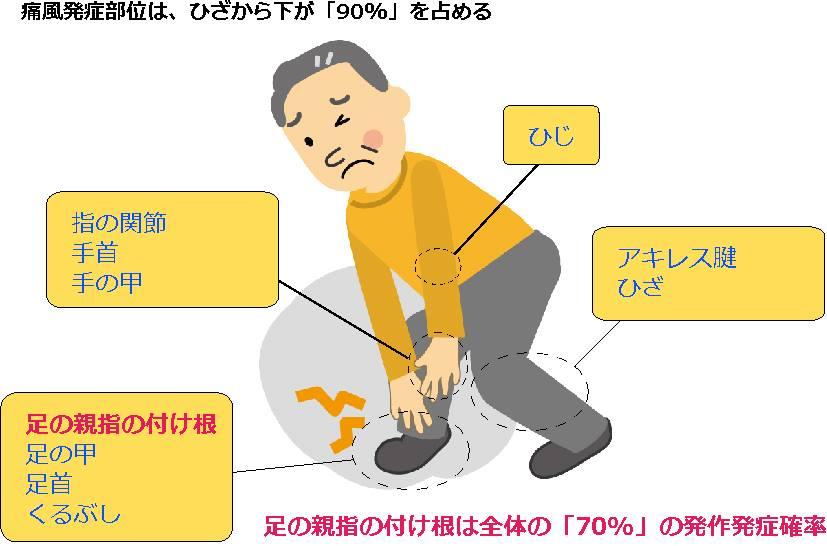 痛風発症部位のイラスト
