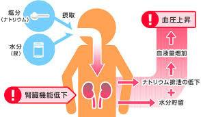 腎臓機能低下による血圧上昇の模式図
