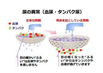 尿の異常(血尿・タンパク尿)のイラスト