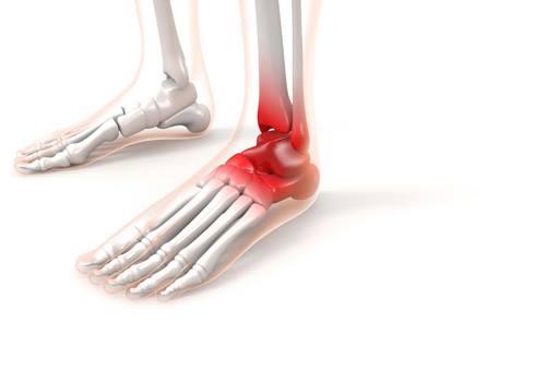 足の関節が炎症を起こしてる骨のイラスト