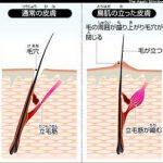 正常の皮膚と鳥肌の立った皮膚が立毛筋が関係することの模式図