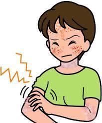 アトピー性皮膚炎に悩む女性